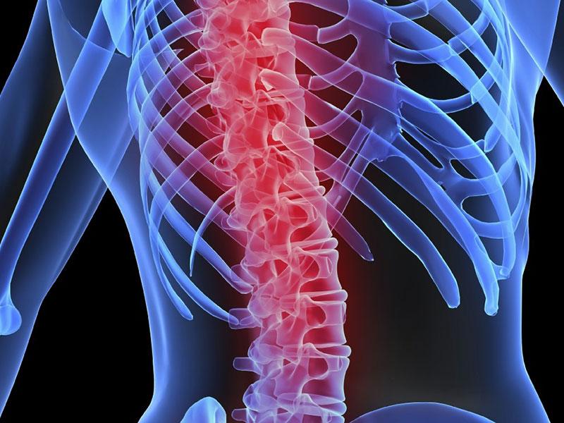 como-ter-uma-coluna-saudavel-1-posturali-pilates-e-osteopatia